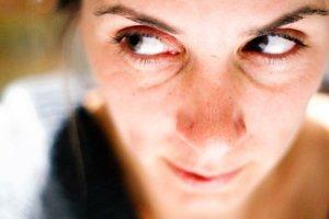Como tratar e prevenir as olheiras