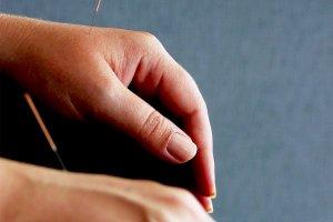 O que é acupuntura?