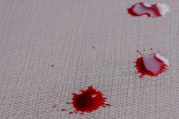 Sonhar com sangue: o que significa?